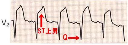 問題8 波形2.JPG