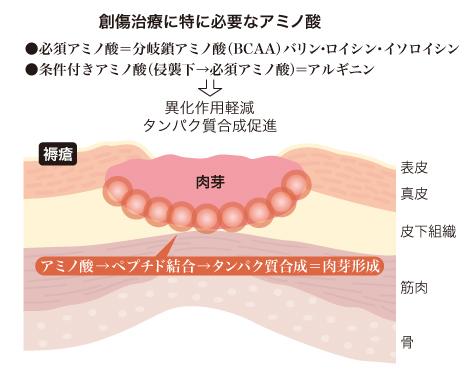 肉芽形成の過程.jpg