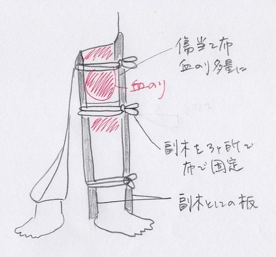図6大腿骨折の手当図 - コピー.JPG