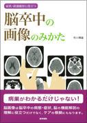 『症状・経過観察に役立つ 脳卒中の画像のみかた』 イメージ