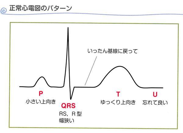 問題5 解説波形.JPG
