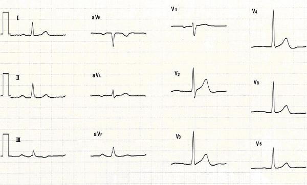 問題5 1つ目の波形.JPG