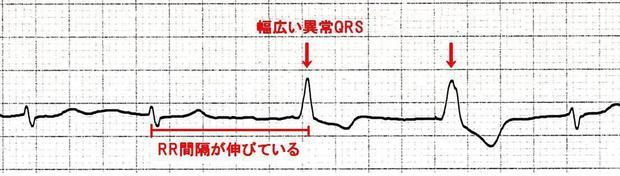 問題7 波形1(矢印あり3).JPG